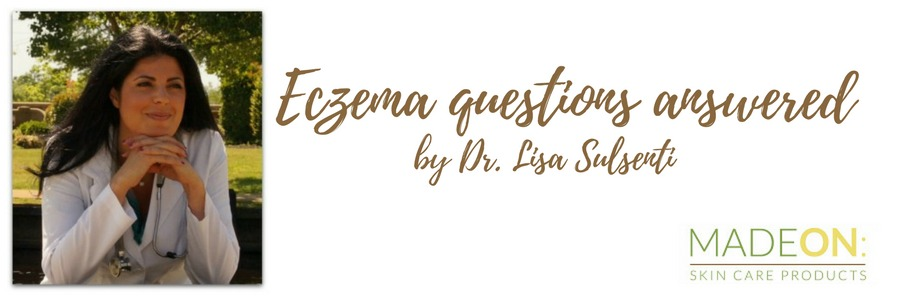 Dr Sulsenti answer questions about eczema and other skin conditions